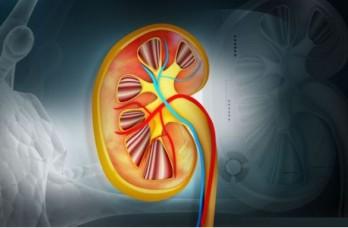 الخراج المحيط بالكلية: الأسباب والأعراض والتشخيص والعلاج تجمع القيح حول إحدى أو كلتا الكليتين التهابات المسالك البولية التي تبدأ في المثانة
