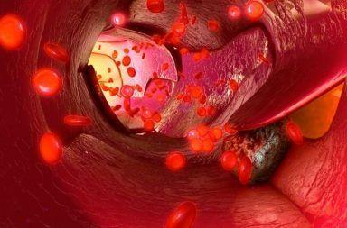 ليزر جديد يمكن أن يستهدف الخلايا السرطانية ويقتلها في مجرى الدم قتل الأورام السرطانية من خلال الليزر تشخيص وعلاج مرض السرطان الورم
