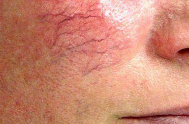 توسع الشعيرات الدموية (الأوردة العنكبوتية) حالة تسبب فيها الأوردة المتسعة (أوعية دموية صغيرة) خطوطًا تشبه الخيوط أو النقوش على الجلد