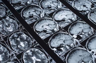 تأثير السمنة على الدماغ تظهره صور الرنين المغناطيسي - السمنة المفرطة لها تأثيرات بالغة على جسم الإنسان - تأثير زيادة الوزن والدهون على الدماغ