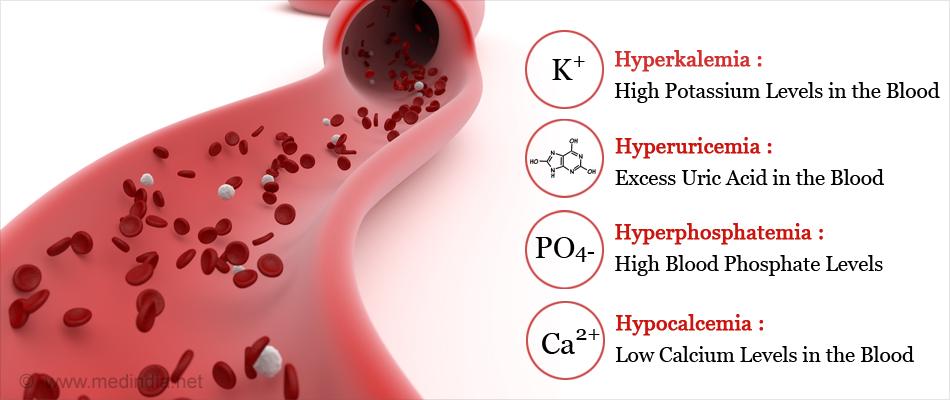متلازمة الانحلال الورمي: الأسباب والأعراض والتشخيص والعلاج - متلازمة انحلال الورم - تدمير الخلايا السرطانية - سرطانات الدم