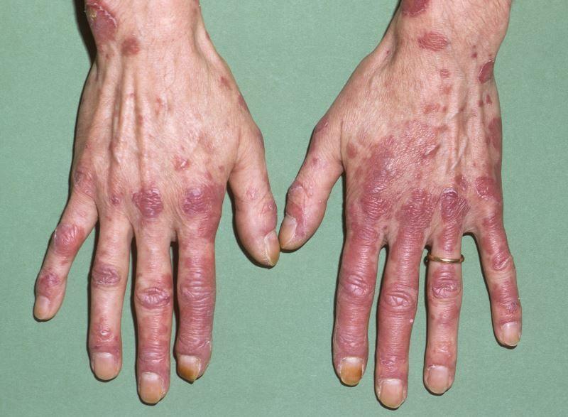 الذئبة الحمامية الجهازية: الأسباب والأعراض والتشخيص والعلاج مرض مناعي ذاتي، إذ يهاجم الجهاز المناعي خطأً الأنسجة السليمة في الجسم