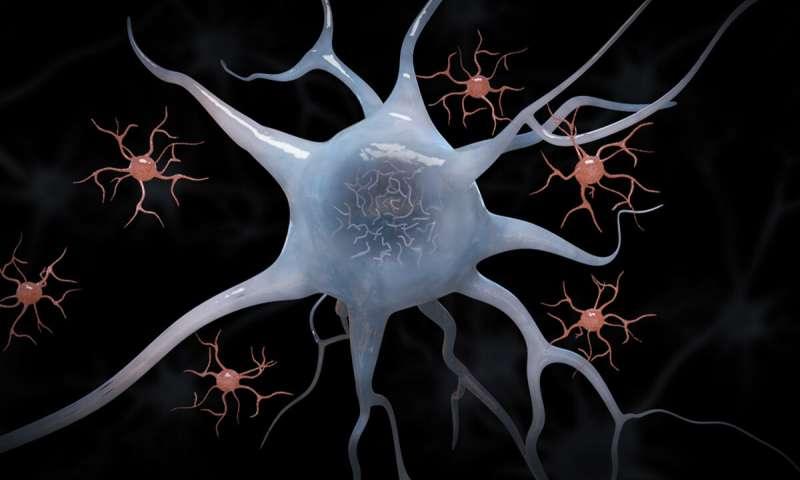 دراسة جديدة تبشر بعلاج مرض ألزهايمر