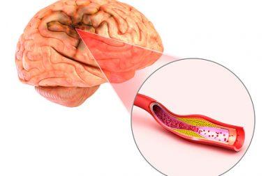 السكتة الدماغية الإقفارية: الأسباب والأعراض والتشخيص والعلاج - نقص تروية الدماغ ونقص تروية المخ - عائق في الشريان الذي يضخ الدم إلى الدماغ