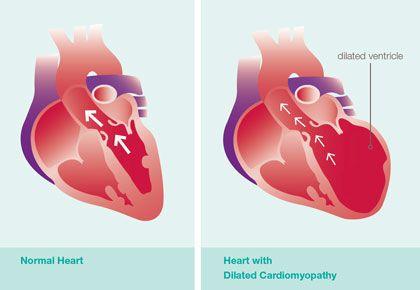 أسباب اعتلال عضلة القلب التوسعي علاج اعتلال عضلة القلب التوسعي الأسباب والأعراض والتشخيص والعلاج ضخ الدم ضربات القلب التمرين