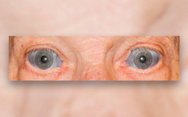 لماذا تحول بياض عيني هذا الرجل إلى الأزرق؟