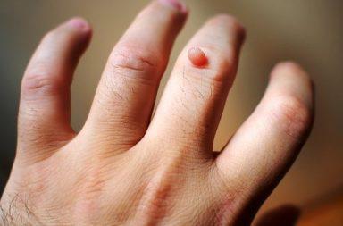 الثآليل الجلدية - الأسباب والأعراض والتشخيص والعلاج - نتوءات على سطح الجلد يسببها فيروس الورم الحليمي البشري HPV - سرطان عنق الرحم
