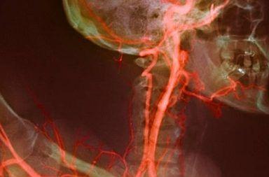 تضيق الشريان السباتي أعراض تضيق الشرايين السباتية الأسباب والأعراض والتشخيص والعلاج السكتة الدماغية الجلطة الدموية نقل الدم إلى الدماغ