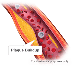 الكوليسترول وتشكل اللويحات العصيدية الشريانية - قد تسبب لويحات الكوليسترول الأمراض القلبية - الخثرة الدموية (الجلطة) - التصلب العصيدي