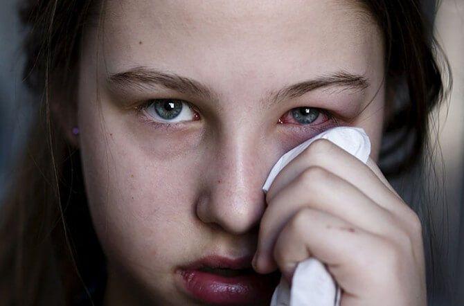 ما هو العمى الهستيري ؟