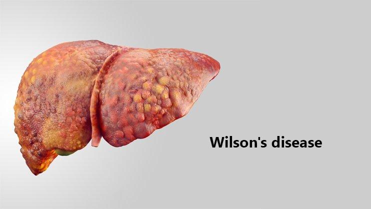 داء ويلسون: الأسباب والأعراض والتشخيص والعلاج - التنكس الكبدي العدسي أو التنكس العدسي المتقدم - اضطراب وراثي نادر يسبب تسمم الجسم بالنحاس