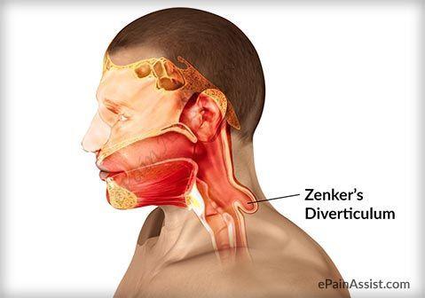 رتج زينكر: الأسباب والأعراض والتشخيص والعلاج بنية غير طبيعية تشبه الكيس جميع مناطق الجهاز الهضمي نقطة اتصال البلعوم والمريء